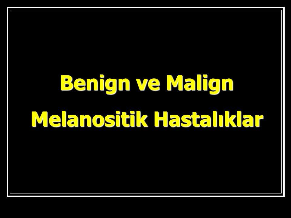 Benign ve Malign Melanositik Hastalıklar