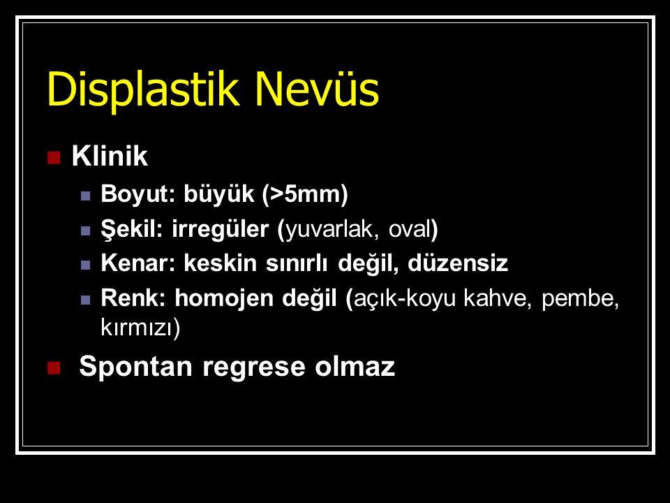 Displastik Nevüs Klinik Boyut: büyük (>5mm) Şekil: irregüler (yuvarlak, oval) Kenar: keskin sınırlı değil, düzensiz Renk: homojen değil (açık-koyu kah