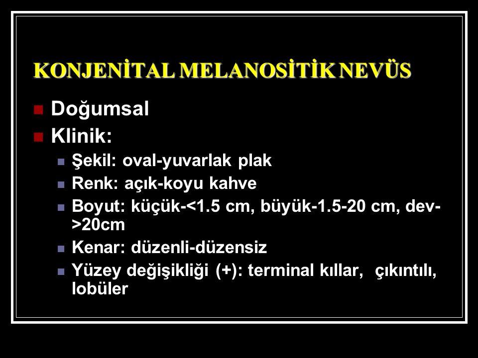 KONJENİTAL MELANOSİTİK NEVÜS Doğumsal Klinik: Şekil: oval-yuvarlak plak Renk: açık-koyu kahve Boyut: küçük- 20cm Kenar: düzenli-düzensiz Yüzey değişikliği (+): terminal kıllar, çıkıntılı, lobüler