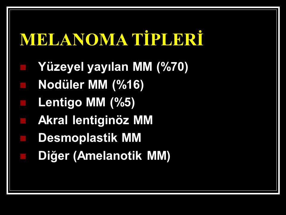 MELANOMA TİPLERİ Yüzeyel yayılan MM (%70) Nodüler MM (%16) Lentigo MM (%5) Akral lentiginöz MM Desmoplastik MM Diğer (Amelanotik MM)