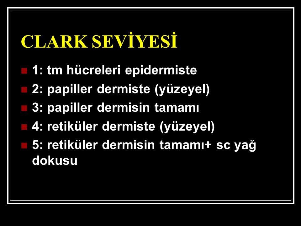 CLARK SEVİYESİ 1: tm hücreleri epidermiste 2: papiller dermiste (yüzeyel) 3: papiller dermisin tamamı 4: retiküler dermiste (yüzeyel) 5: retiküler dermisin tamamı+ sc yağ dokusu