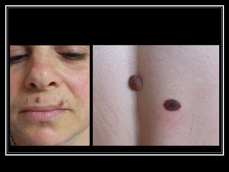 PROGNOSTİK FAKTÖRLER Tümör kalınlığı: Breslow tm kalınlığı**** Clark seviyesi Cinsiyet: erkek-kötü prognoz Lokalizasyon: sırt, skalp, avuç içi-ayak tabanı kötü prognoz MM tipi: Nodüler MM-en kötü prognoz Akral lentiginöz MM- kötü prognoz Yüzeyel yayılan MM ve LMM iyi prognoz