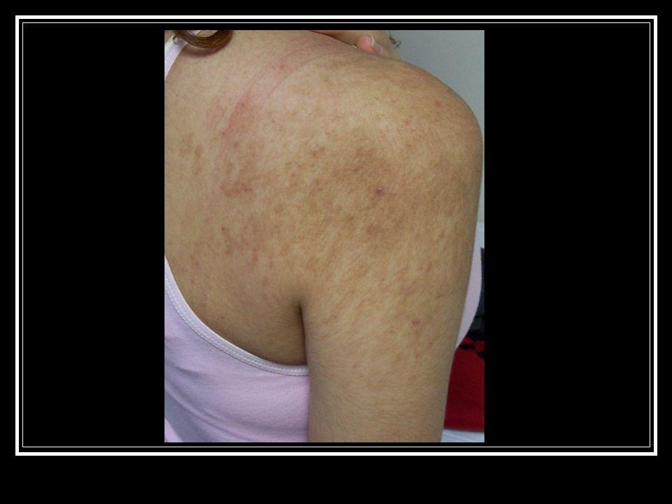 MELANOMA RİSK FAKTÖRLERİ M Mol : atipik (displastik (Clark) nevus) (>5) M Mol: akkiz nevomelanositik nevüs (>50) R Red (kızıl)saç ve çil I Inability to tan: deri fototipi 1 ve 2 S Sunburn: 14 yaş öncesinde büllü güneş yanığı K Kindred: aile öyküsü
