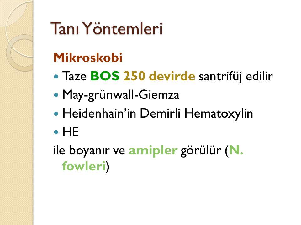 Tanı Yöntemleri Mikroskobi Taze BOS 250 devirde santrifüj edilir May-grünwall-Giemza Heidenhain'in Demirli Hematoxylin HE ile boyanır ve amipler görül