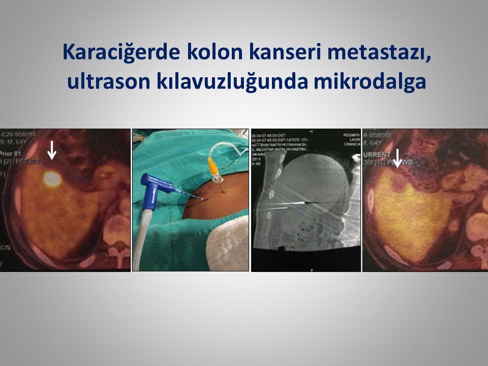 C * Karaciğerde kolon kanseri metastazı, ultrason kılavuzluğunda mikrodalga