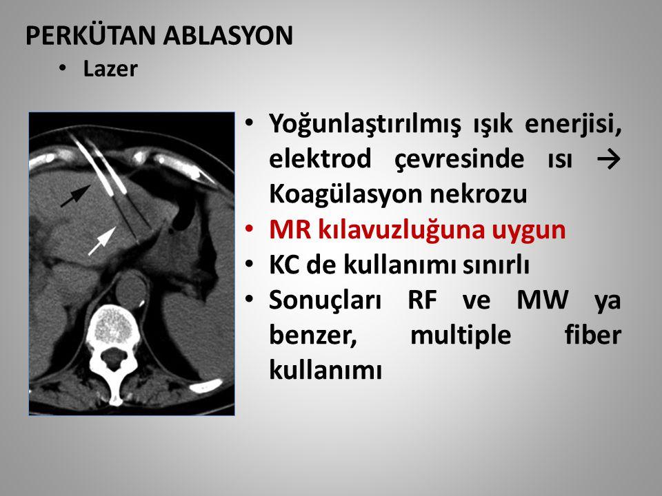 PERKÜTAN ABLASYON Lazer Yoğunlaştırılmış ışık enerjisi, elektrod çevresinde ısı → Koagülasyon nekrozu MR kılavuzluğuna uygun KC de kullanımı sınırlı S