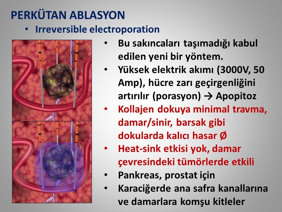 PERKÜTAN ABLASYON Irreversible electroporation Bu sakıncaları taşımadığı kabul edilen yeni bir yöntem. Yüksek elektrik akımı (3000V, 50 Amp), hücre za
