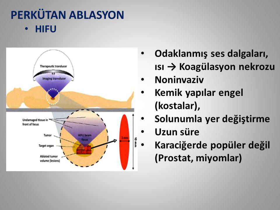 PERKÜTAN ABLASYON HIFU Odaklanmış ses dalgaları, ısı → Koagülasyon nekrozu Noninvaziv Kemik yapılar engel (kostalar), Solunumla yer değiştirme Uzun sü