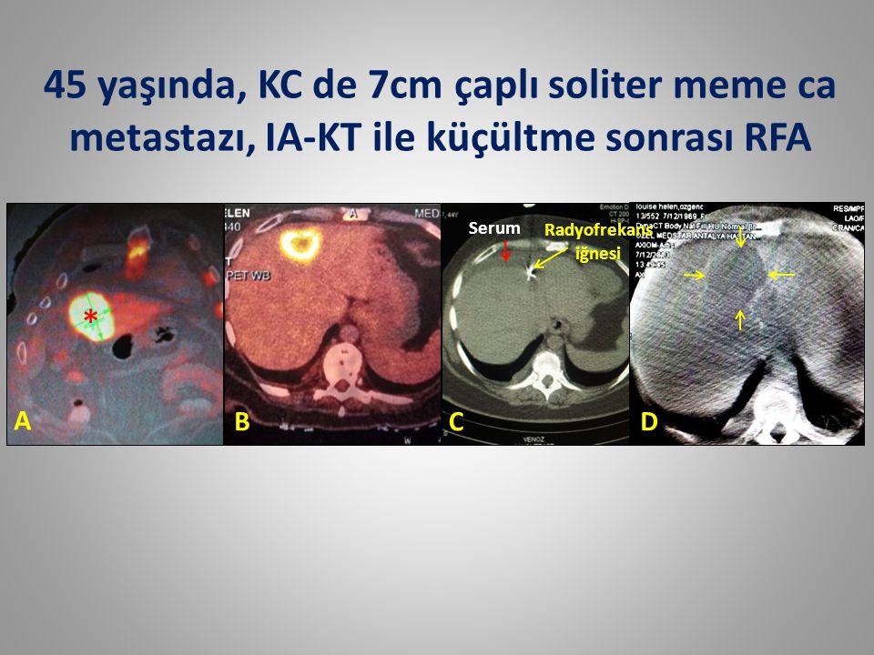 A BCD * Radyofrekans iğnesi Serum 45 yaşında, KC de 7cm çaplı soliter meme ca metastazı, IA-KT ile küçültme sonrası RFA