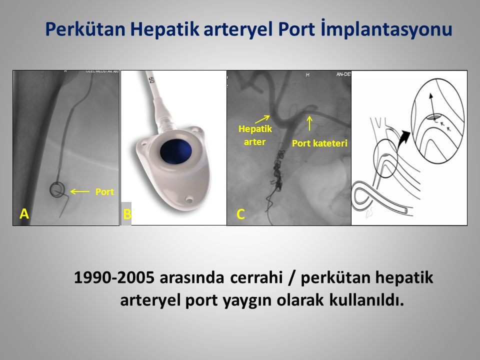 A BC Port kateteri Hepatik arter Port Perkütan Hepatik arteryel Port İmplantasyonu 1990-2005 arasında cerrahi / perkütan hepatik arteryel port yaygın olarak kullanıldı.