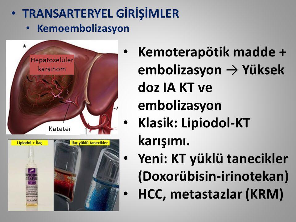 TRANSARTERYEL GİRİŞİMLER Kemoembolizasyon Kemoterapötik madde + embolizasyon → Yüksek doz IA KT ve embolizasyon Klasik: Lipiodol-KT karışımı. Yeni: KT