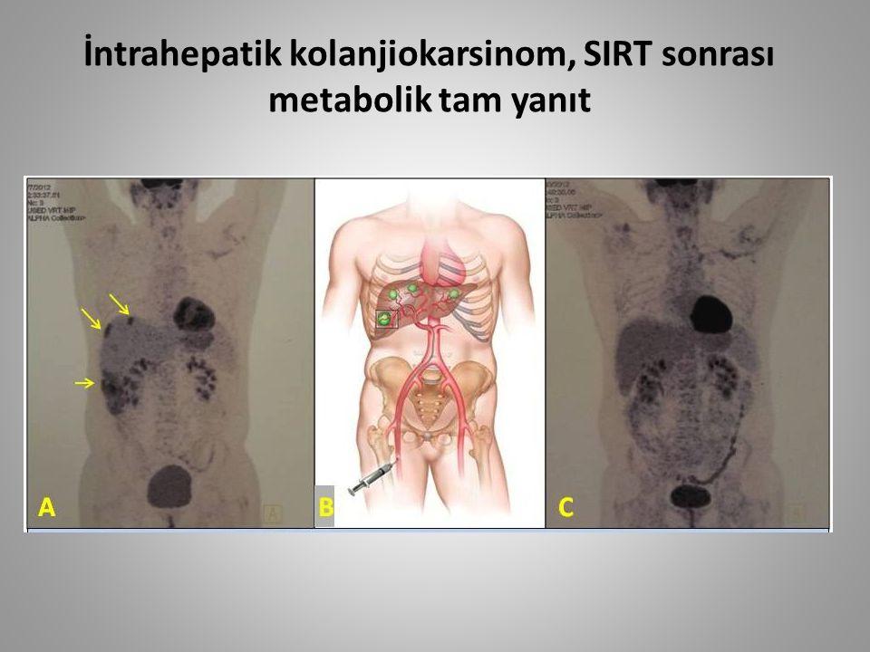 İntrahepatik kolanjiokarsinom, SIRT sonrası metabolik tam yanıt