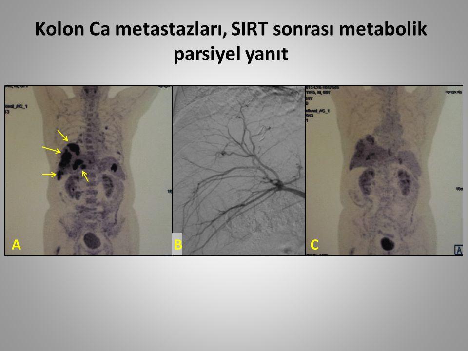 ABC Kolon Ca metastazları, SIRT sonrası metabolik parsiyel yanıt