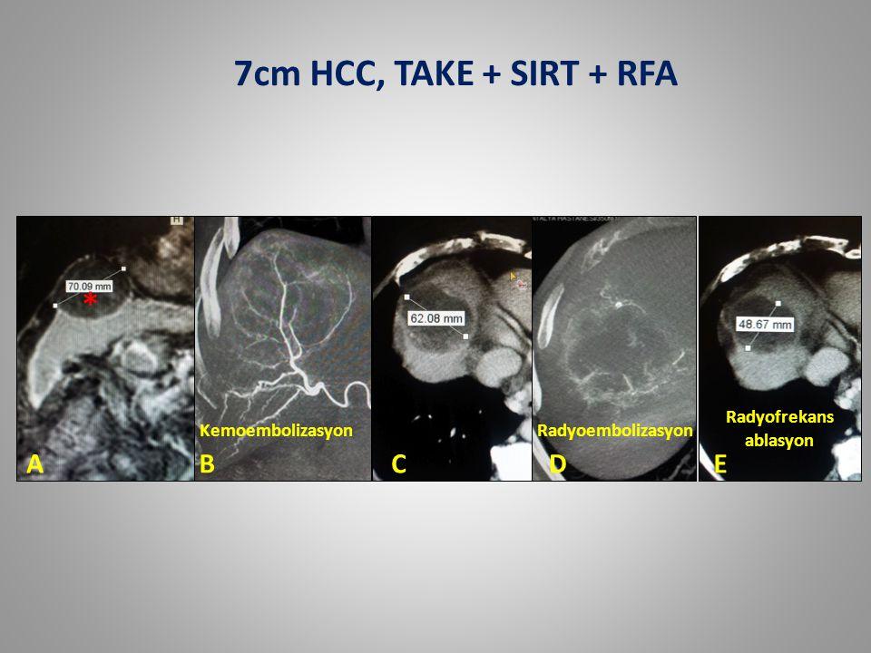 ABCDE * Radyofrekans ablasyon RadyoembolizasyonKemoembolizasyon 7cm HCC, TAKE + SIRT + RFA