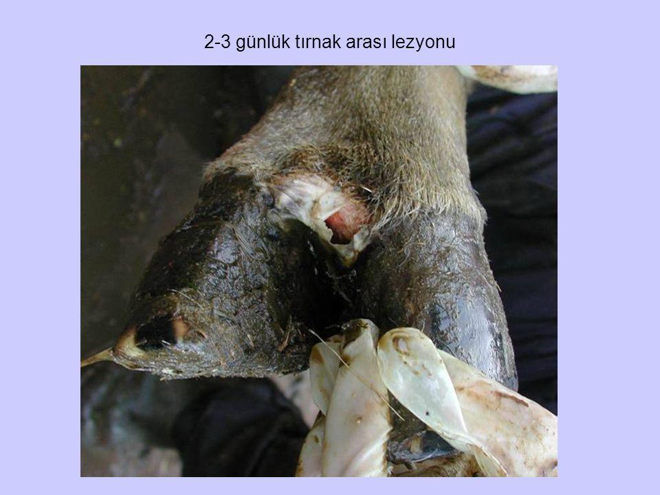 2-3 günlük tırnak arası lezyonu