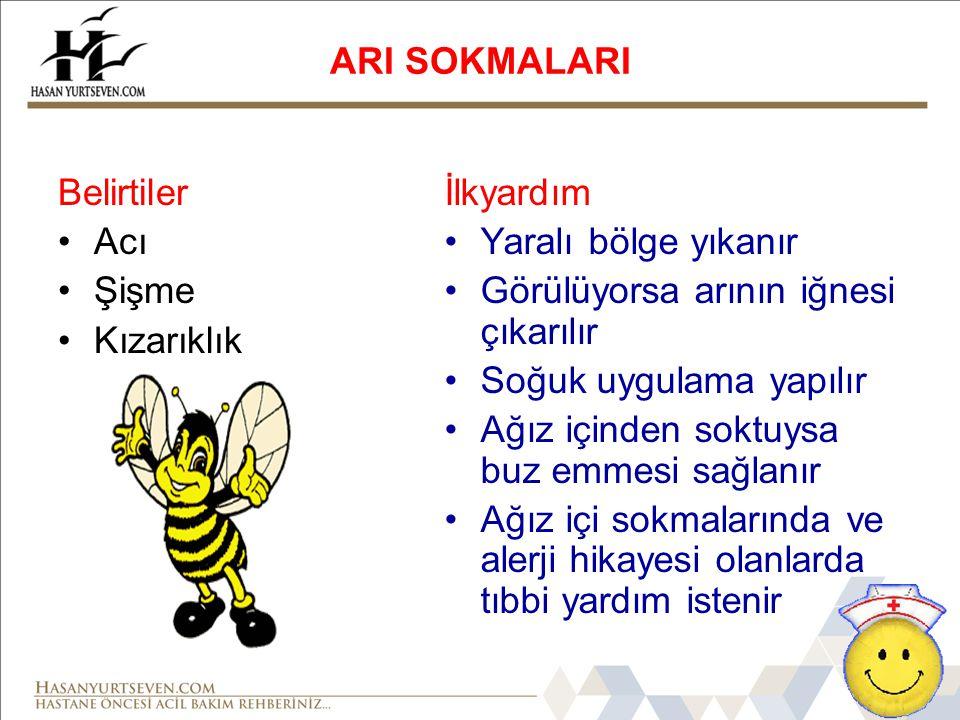 ARI SOKMALARI Belirtiler Acı Şişme Kızarıklık İlkyardım Yaralı bölge yıkanır Görülüyorsa arının iğnesi çıkarılır Soğuk uygulama yapılır Ağız içinden s