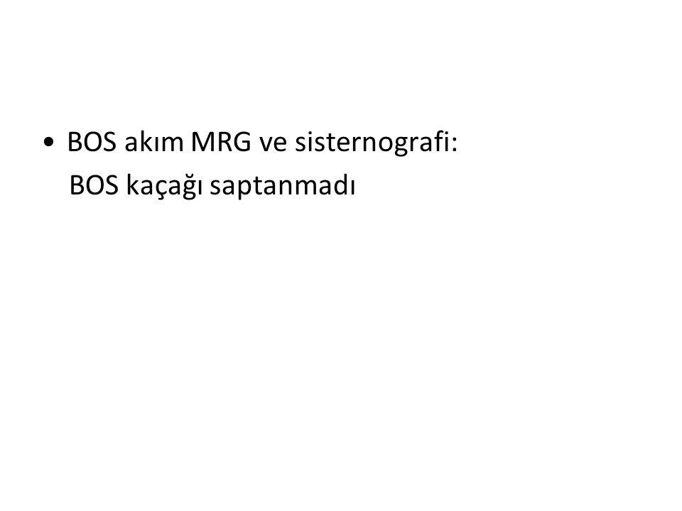 BOS akım MRG ve sisternografi: BOS kaçağı saptanmadı