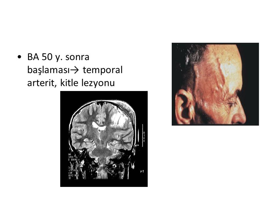 BA 50 y. sonra başlaması→ temporal arterit, kitle lezyonu