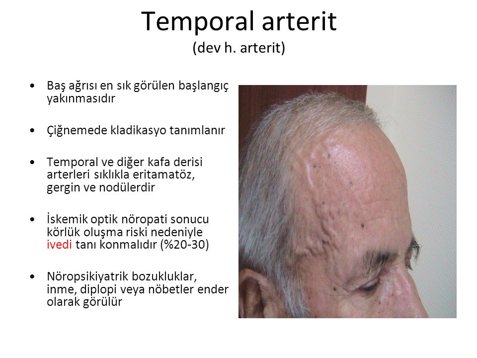 Temporal arterit (dev h.