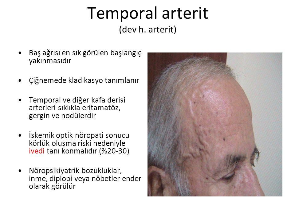 Temporal arterit (dev h. arterit) Baş ağrısı en sık görülen başlangıç yakınmasıdır Çiğnemede kladikasyo tanımlanır Temporal ve diğer kafa derisi arter