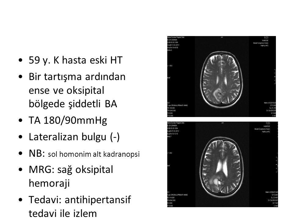 59 y. K hasta eski HT Bir tartışma ardından ense ve oksipital bölgede şiddetli BA TA 180/90mmHg Lateralizan bulgu (-) NB: sol homonim alt kadranopsi M