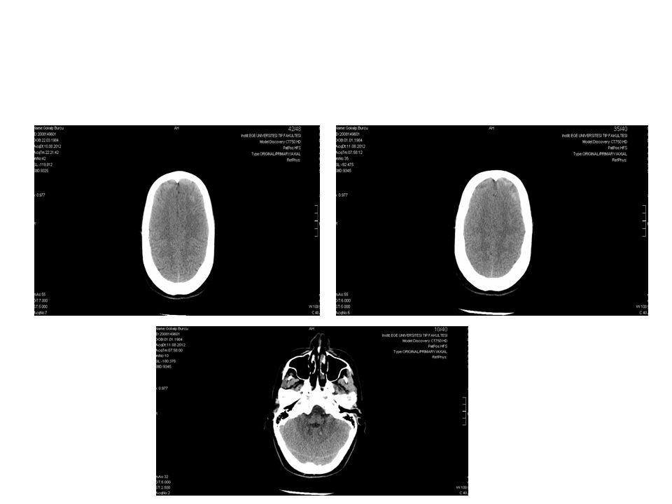 GK: Sağ p(-), sol: 0.8 Sağda RAPD GD: Sağda soluk, ödemli OD