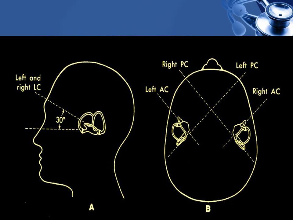 TANI Hastanın verdiği öykü + klinik veriler Eleme yöntemi Odyometri Elektrokokleografi Elektronistagmografi Kalorik testler Laboratuvar Radyoloji