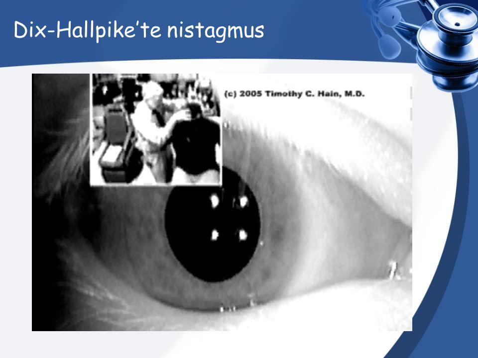 Dix-Hallpike'te nistagmus