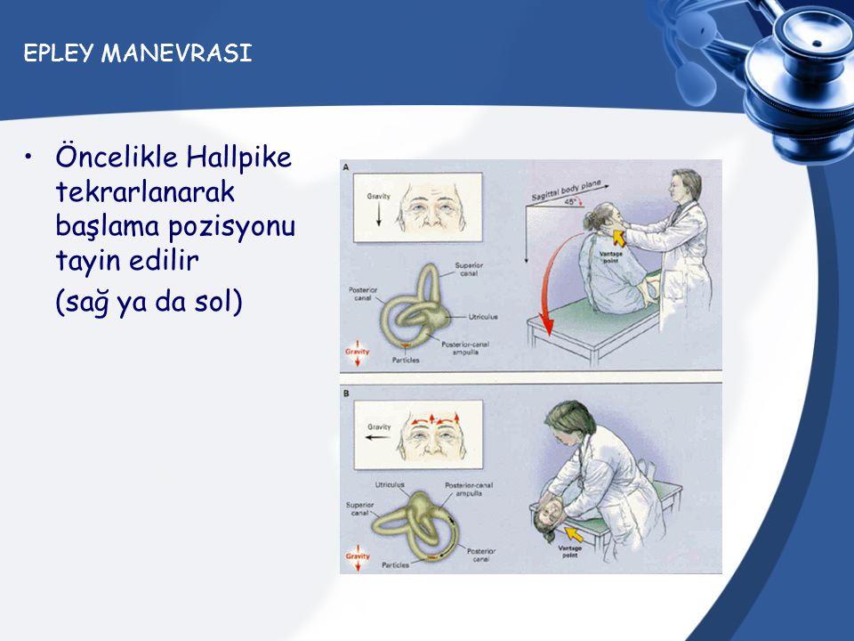 EPLEY MANEVRASI Öncelikle Hallpike tekrarlanarak başlama pozisyonu tayin edilir (sağ ya da sol)