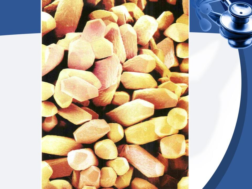 DİÜRETİK TEDAVİSİ Hidroklorotiazit + triamteren = 3 ay sonra değerlendirme Tiazid kullanamayanda = Asetazolamid (Diamox tb 2x1) Diyet + Diüretik Tedavisi Semptomlar % 58