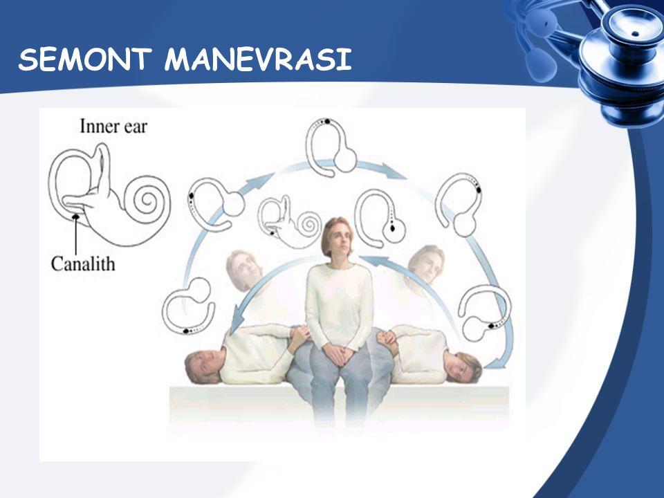 SEMONT MANEVRASI