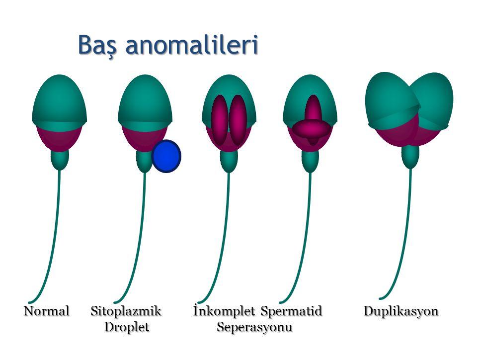 Baş anomalileri Normal Sitoplazmik İnkomplet Spermatid Duplikasyon Droplet Seperasyonu Droplet Seperasyonu 19