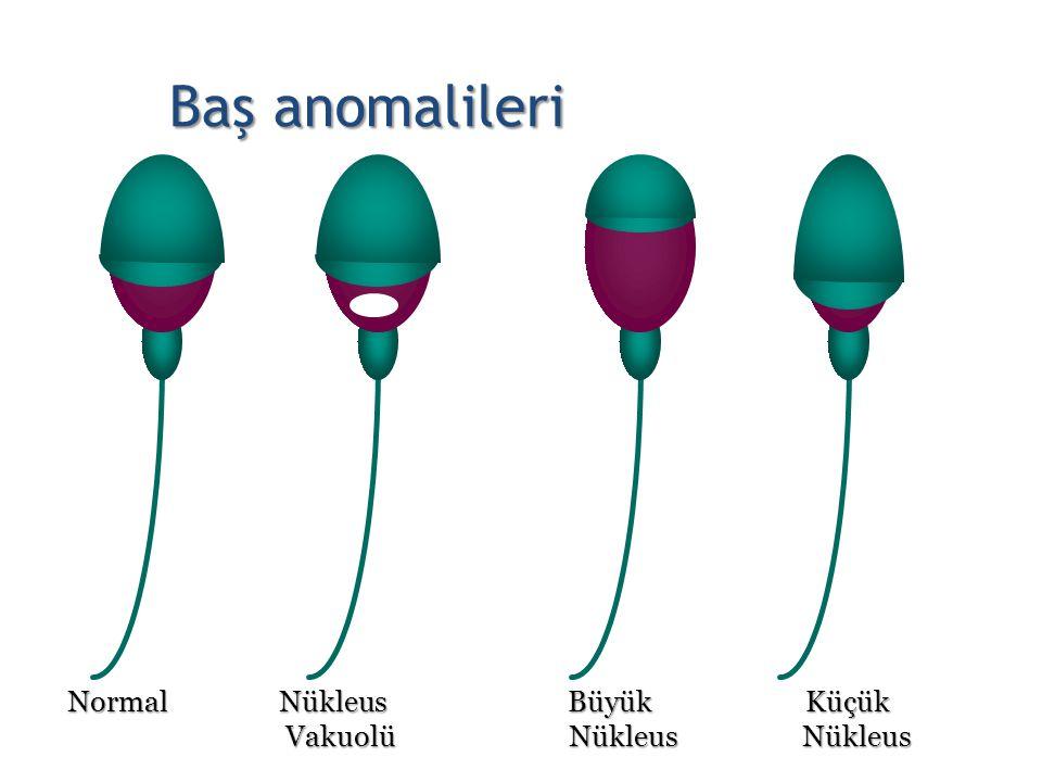 Normal Nükleus Büyük Küçük Vakuolü Nükleus Nükleus Vakuolü Nükleus Nükleus Baş anomalileri 20