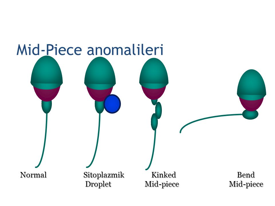 Mid-Piece anomalileri Normal Sitoplazmik Kinked Bend Normal Sitoplazmik Kinked Bend Droplet Mid-piece Mid-piece Droplet Mid-piece Mid-piece 23