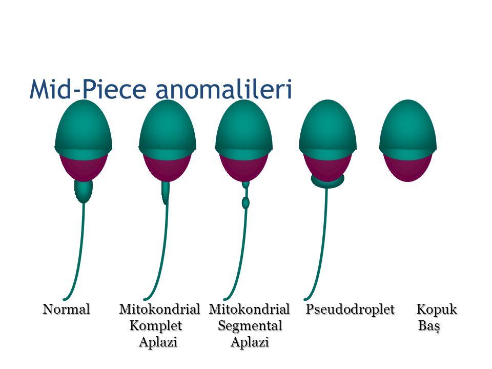 Mid-Piece anomalileri Normal Mitokondrial Mitokondrial Pseudodroplet Kopuk Komplet Segmental Baş Komplet Segmental Baş Aplazi Aplazi Aplazi Aplazi 24