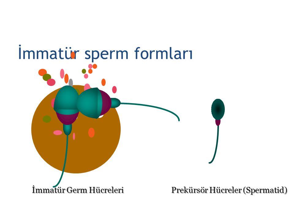 İmmatür sperm formları İmmatür Germ Hücreleri Prekürsör Hücreler (Spermatid) 28