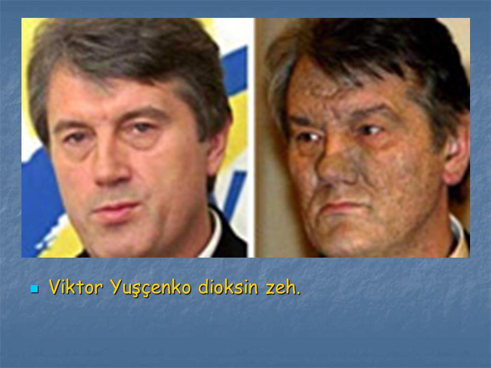 Viktor Yuşçenko dioksin zeh. Viktor Yuşçenko dioksin zeh.
