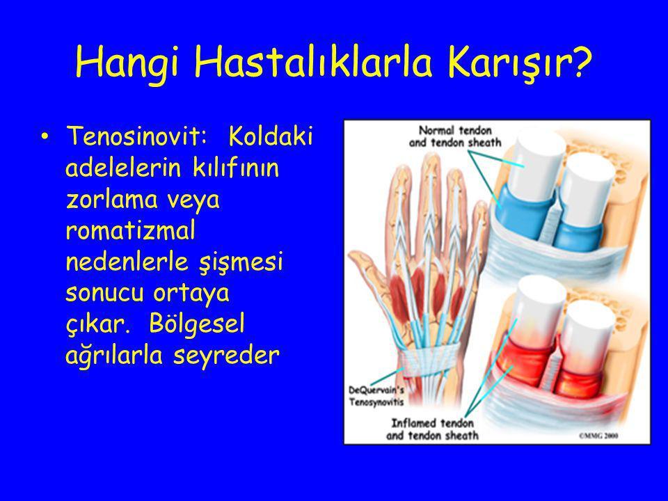 Hangi Hastalıklarla Karışır? Tenosinovit: Koldaki adelelerin kılıfının zorlama veya romatizmal nedenlerle şişmesi sonucu ortaya çıkar. Bölgesel ağrıla