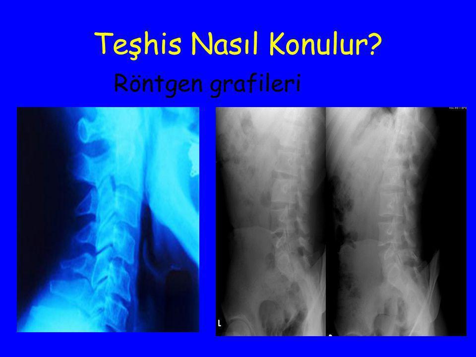 Teşhis Nasıl Konulur? Röntgen grafileri