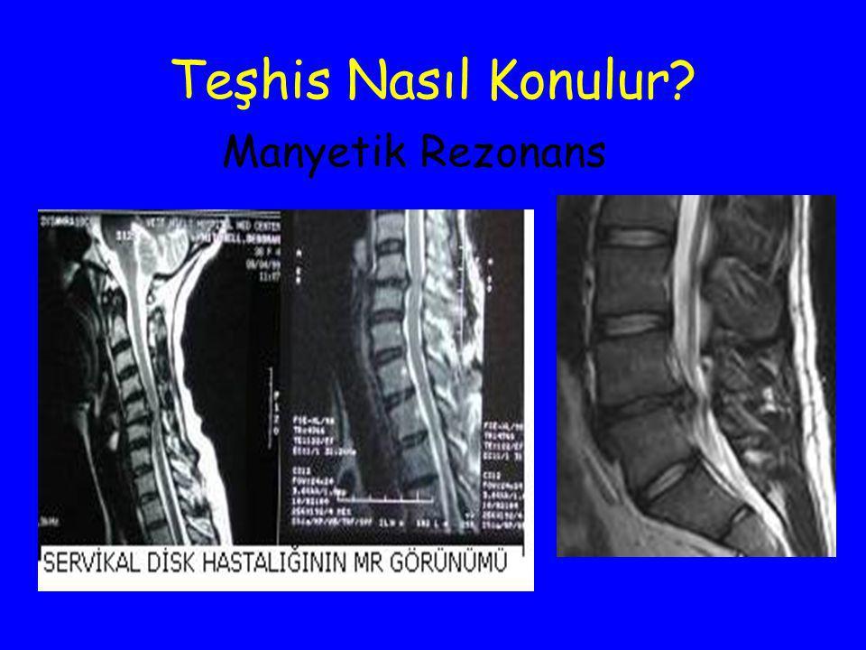Teşhis Nasıl Konulur? Manyetik Rezonans