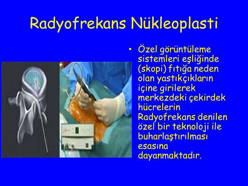 Radyofrekans Nükleoplasti Özel görüntüleme sistemleri eşliğinde (skopi) fıtığa neden olan yastıkçıkların içine girilerek merkezdeki çekirdek hücreleri