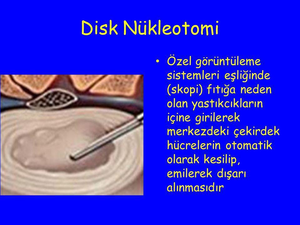 Disk Nükleotomi Özel görüntüleme sistemleri eşliğinde (skopi) fıtığa neden olan yastıkcıkların içine girilerek merkezdeki çekirdek hücrelerin otomatik