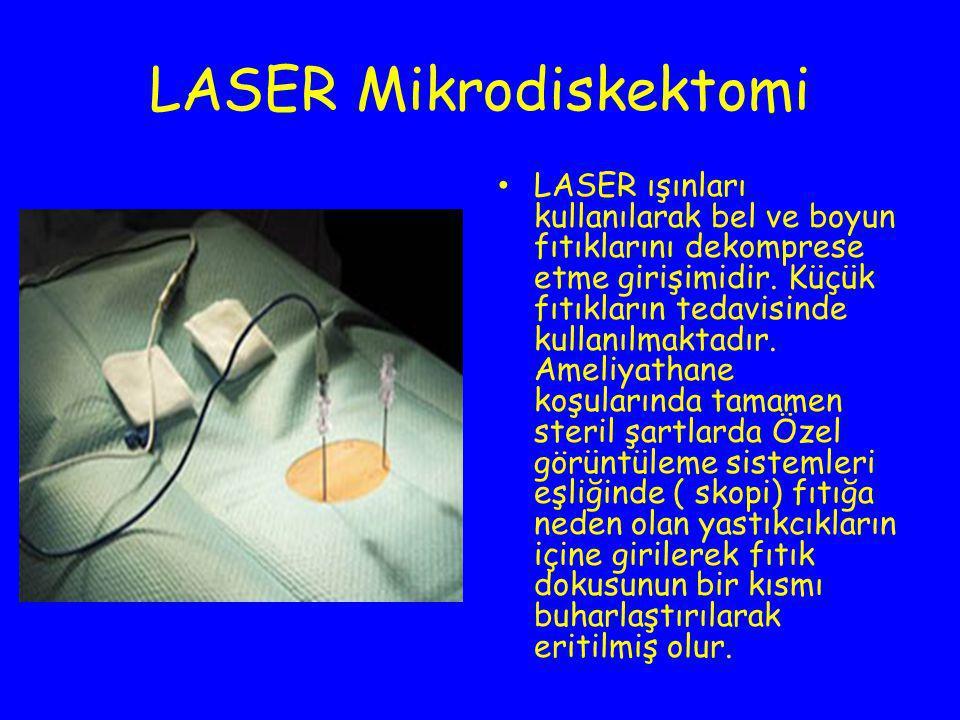 LASER Mikrodiskektomi LASER ışınları kullanılarak bel ve boyun fıtıklarını dekomprese etme girişimidir. Küçük fıtıkların tedavisinde kullanılmaktadır.