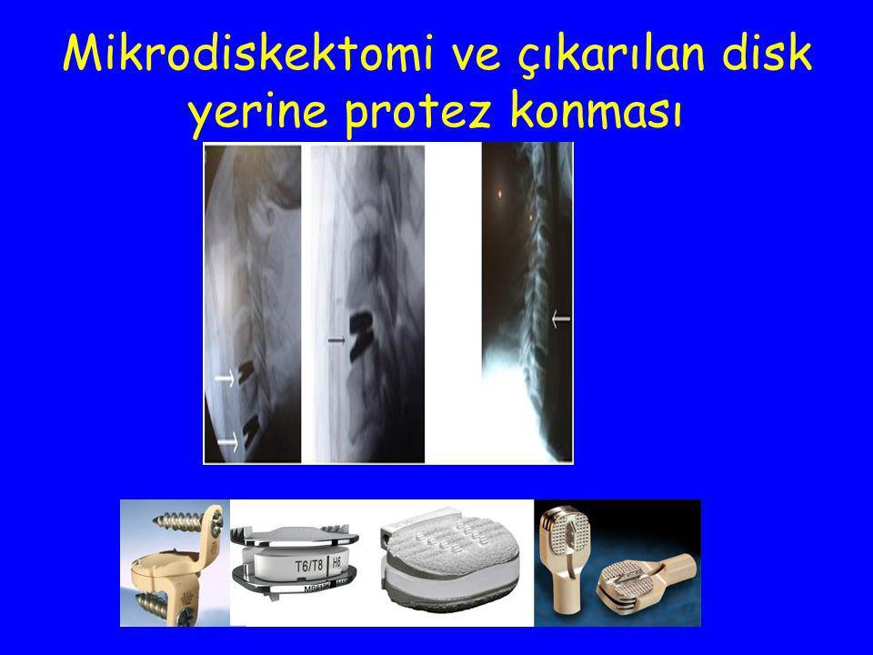 Mikrodiskektomi ve çıkarılan disk yerine protez konması