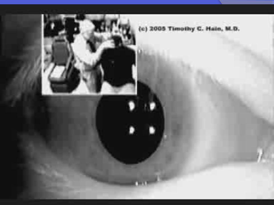 BENİGN PAROKSİSMAL POZİSYONEL VERTİGO-X Yana yatırma testi; Sağ ve sol olmak üzere iki tetikleyici hareketi içerir.