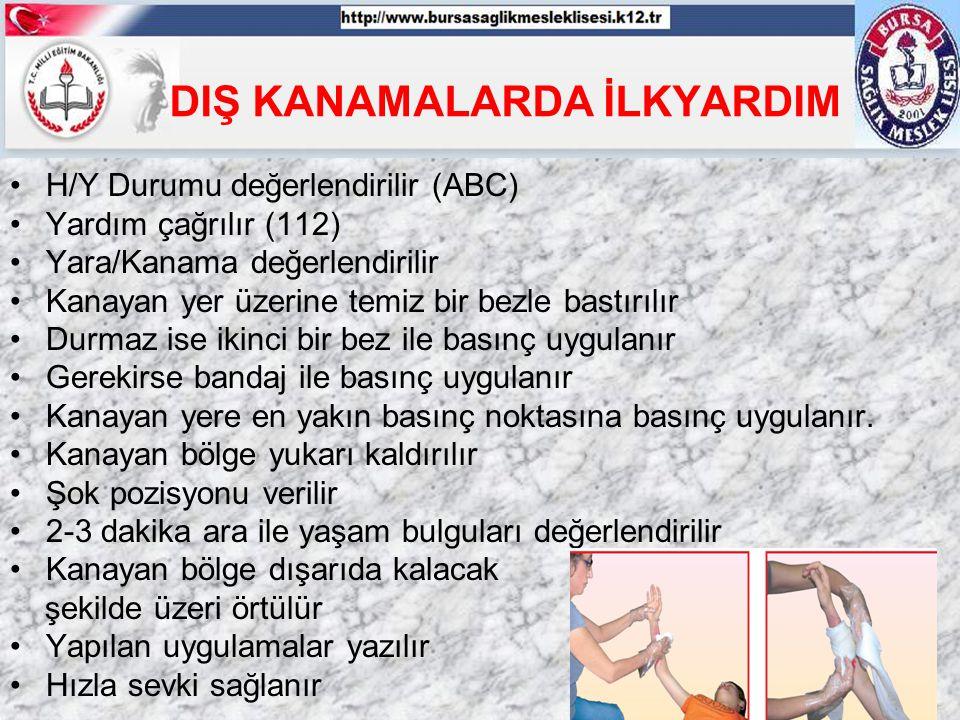 DIŞ KANAMALARDA İLKYARDIM H/Y Durumu değerlendirilir (ABC) Yardım çağrılır (112) Yara/Kanama değerlendirilir Kanayan yer üzerine temiz bir bezle bastı