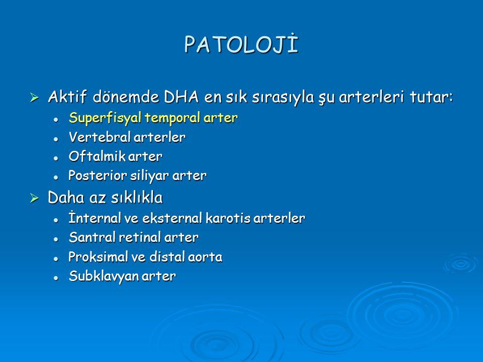 PATOLOJİ  Aktif dönemde DHA en sık sırasıyla şu arterleri tutar: Superfisyal temporal arter Superfisyal temporal arter Vertebral arterler Vertebral a