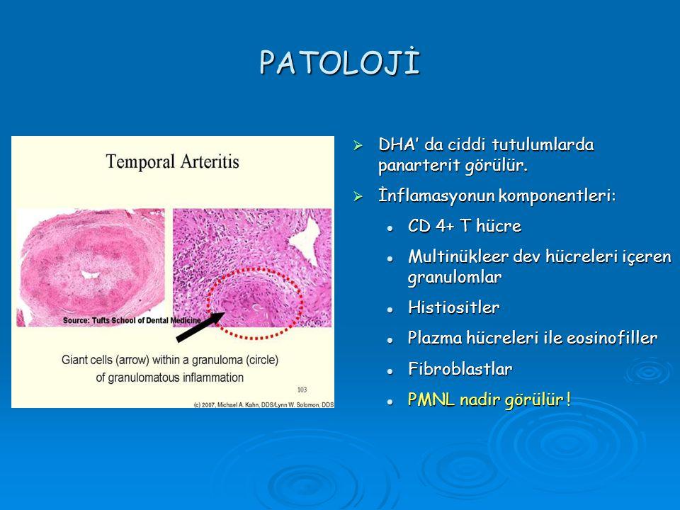 PATOLOJİ  DHA' da ciddi tutulumlarda panarterit görülür.  İnflamasyonun komponentleri: CD 4+ T hücre CD 4+ T hücre Multinükleer dev hücreleri içeren
