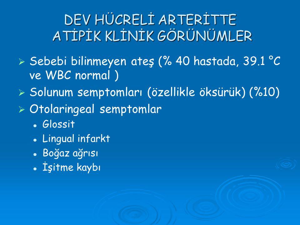 DEV HÜCRELİ ARTERİTTE ATİPİK KLİNİK GÖRÜNÜMLER   Sebebi bilinmeyen ateş (% 40 hastada, 39.1 °C ve WBC normal )   Solunum semptomları (özellikle ök