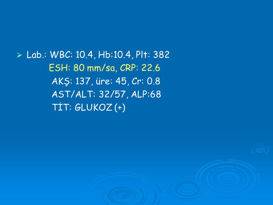   Lab.: WBC: 10.4, Hb:10.4, Plt: 382 ESH: 80 mm/sa, CRP: 22.6 AKŞ: 137, üre: 45, Cr: 0.8 AST/ALT: 32/57, ALP:68 TİT: GLUKOZ (+)